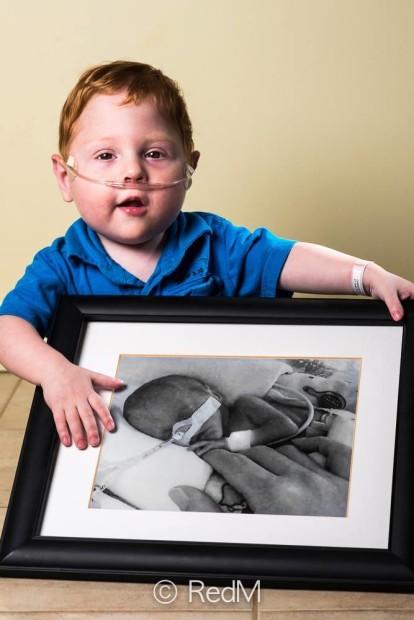 фотопроект недоношенные дети